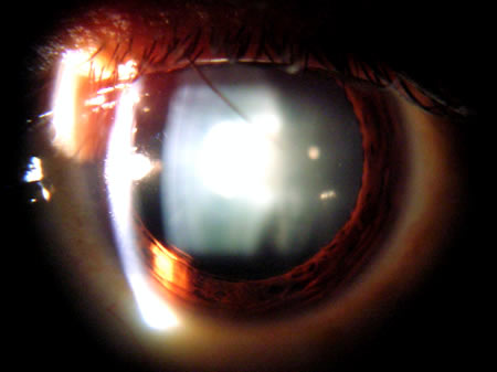View of an Eye with a Cataract