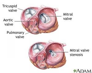 heart valve diagram 2