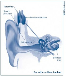 cochlear implant NIH
