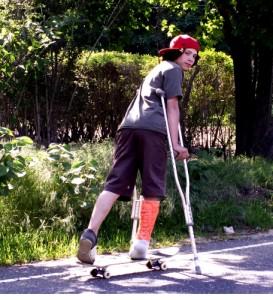 disabled Skateboard-cast-broken_leg-690475-l